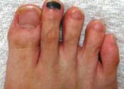 爪下血腫【ランナー黒爪】治らないのはシューズが原因?6つの予防法を紹介
